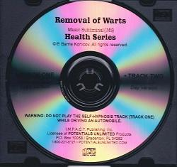 Removal of Warts MS